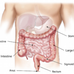 Naturopathic Doctor Digestive Disorders