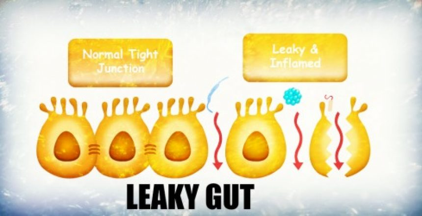 leakygut2 small